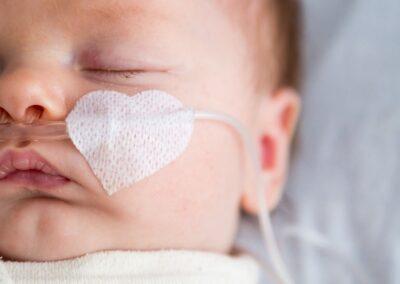 Bild zeigt: Neugeborenes mit Sauerstoffbrille